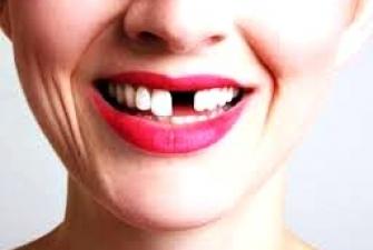 Потеря зубов провоцирует появление раковых опухолей