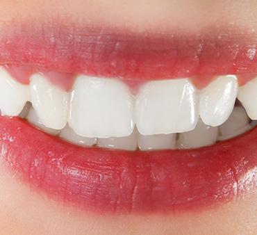 Художественная реставрация зубов 1