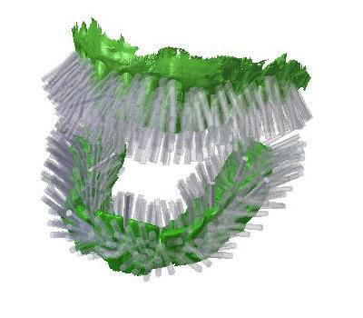 Blizzident: щетка, которая самостоятельно чистит зубы 1