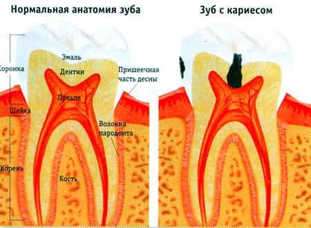 лечение кариеса в Евпатории