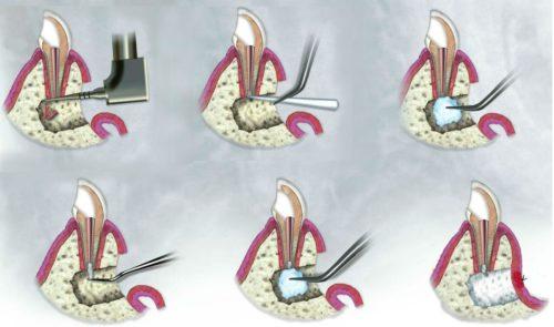 зубосохраняющие операции