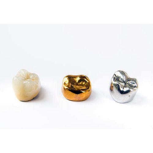Цельнолитые коронки из сплава не драгоценного металла и благородного металла