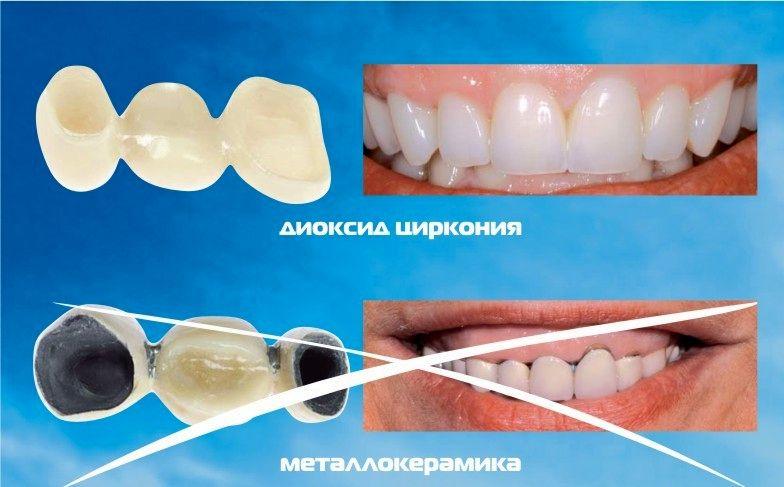 Диоксид циркония