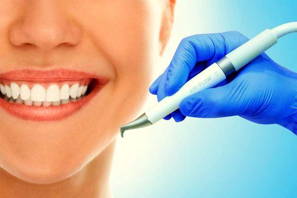 Процедура Air-Flow для чистки зубного налета
