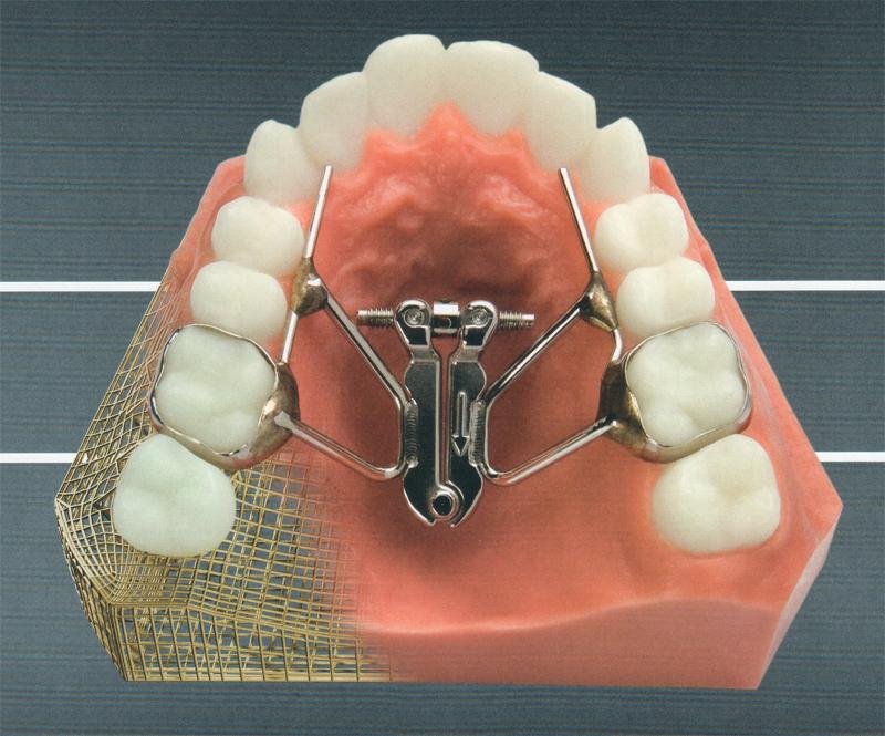 Съемные аппараты в ортодонтии